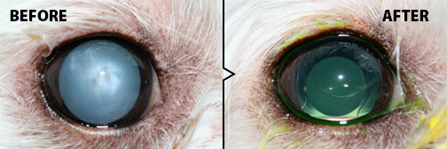 Cataract Surgery - before and after